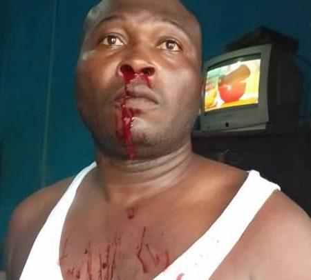 Cops Beaten To Pulp At Wassa Akropong