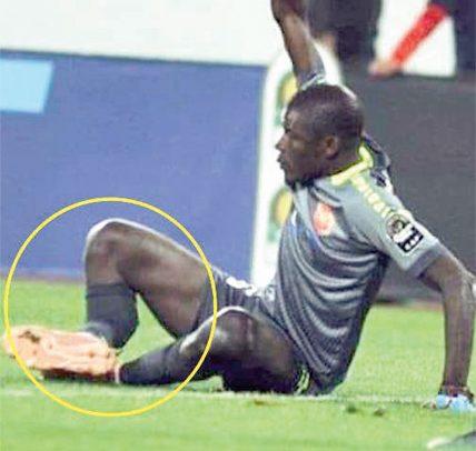 Senegal Keeper Suffers Leg Break
