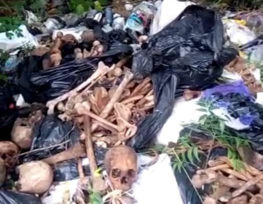 Human 'Bones' Dumped On Refuse Site